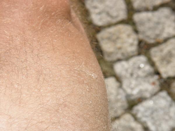 suchá kůže